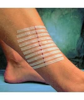 Sutures cutanées adhésives Stéri-strips 3M