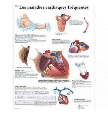 Planche anatomique - Système Cardiovasculaire